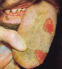Click for more on Foot and Mouth Disease in cattle - Photo courtesy Defra, Crown Copyright